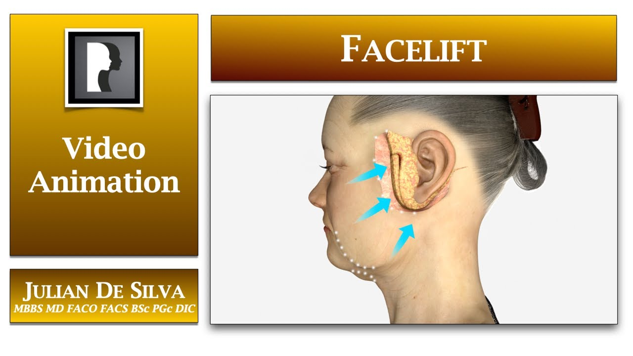 Watch Video: What happens in a facelift? An animation of a facelift procedure