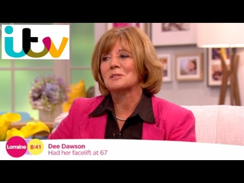 Watch Video: ITV Lorraine Show Featured patient of Dr.Julian De Silva, underwent Natural Face and Neck lifting