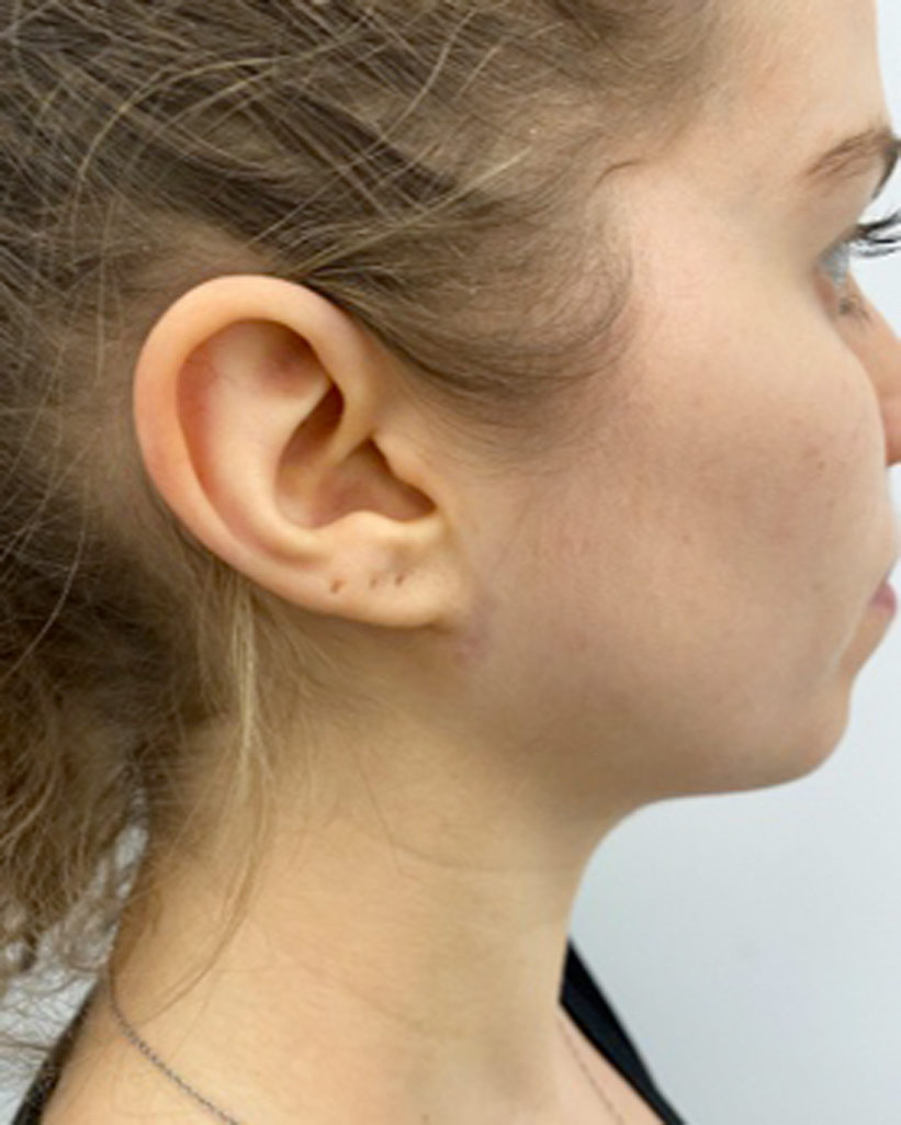 For face and neck lift Virtual Consultation - 1 photo: face or neck (side oblique view)
