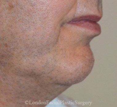 Chin Implants & Reduction Before 27
