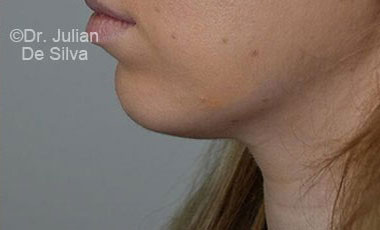 Chin Implants & Reduction After 20