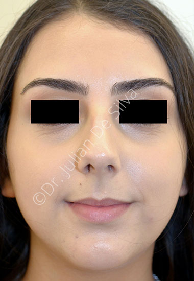 Nose Re-Shaping Before 100