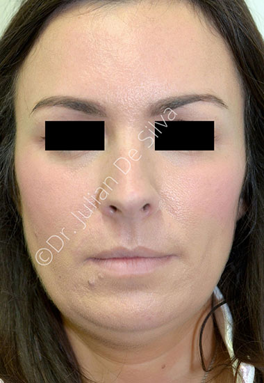 Nose Re-Shaping Before 101