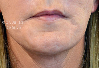 Skin & Laser Resurfacing Before 10
