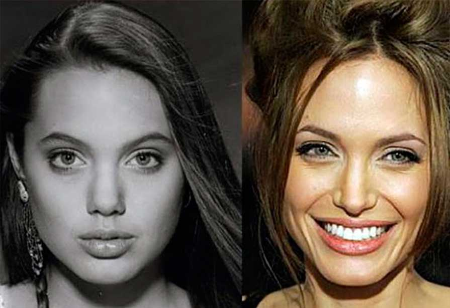 Angelina Jolie - Before and After Treatment photos