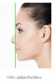Woman's face, After Chin & Jaw Line Filler Enhancement, left side view