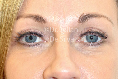 Eyelid Surgery (Blepharoplasty) After 117