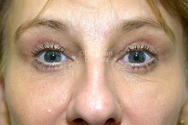 Eyelid Surgery (Blepharoplasty) After 118