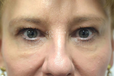 Eyelid Surgery (Blepharoplasty) Before 118
