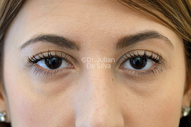 Eyelid Surgery (Blepharoplasty) Before 119