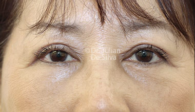 Eyelid Surgery (Blepharoplasty) After 120