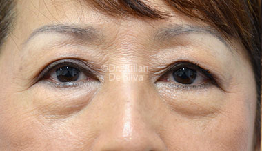 Eyelid Surgery (Blepharoplasty) Before 120
