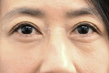Eyelid Surgery (Blepharoplasty) Before 121
