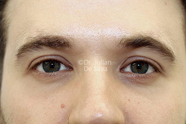 Eyelid Surgery (Blepharoplasty) After 123