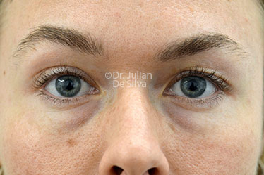 Eyelid Surgery (Blepharoplasty) Before 124
