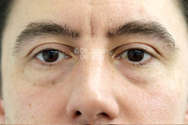 Eyelid Surgery (Blepharoplasty) Before 125