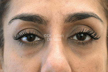 Eyelid Surgery (Blepharoplasty) Before 127