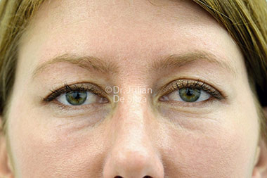 Eyelid Surgery (Blepharoplasty) Before 128