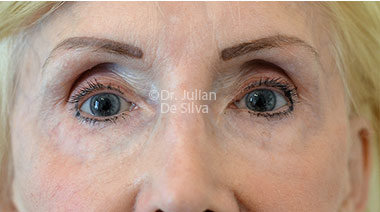 Eyelid Surgery (Blepharoplasty) Before 130