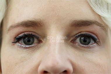 Eyelid Surgery (Blepharoplasty) After 131