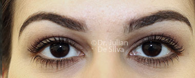Eyelid Surgery (Blepharoplasty) After 132