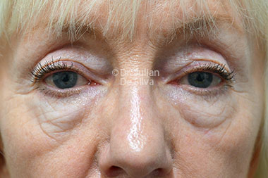Eyelid Surgery (Blepharoplasty) Before 133
