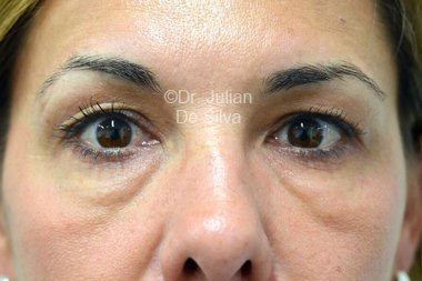 Eyelid Surgery (Blepharoplasty) Before 103