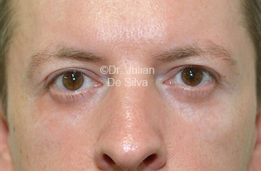 Eyelid Surgery (Blepharoplasty) After 108