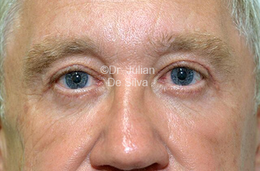 Eyelid Surgery (Blepharoplasty) After 109