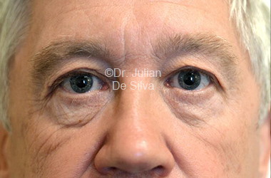 Eyelid Surgery (Blepharoplasty) Before 109