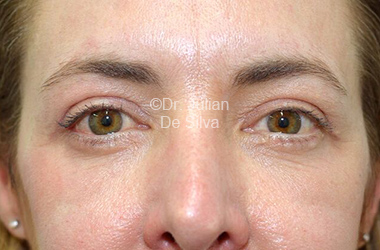 Eyelid Surgery (Blepharoplasty) After 110