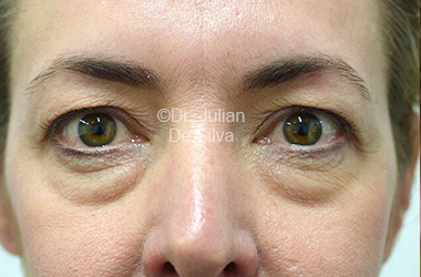 Eyelid Surgery (Blepharoplasty) Before 110