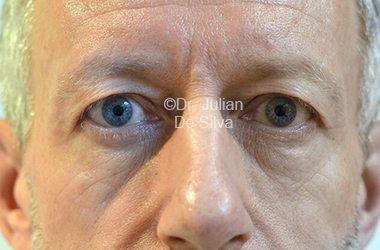 Eyelid Surgery (Blepharoplasty) Before 113