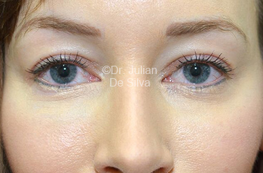 Eyelid Surgery (Blepharoplasty) After 114