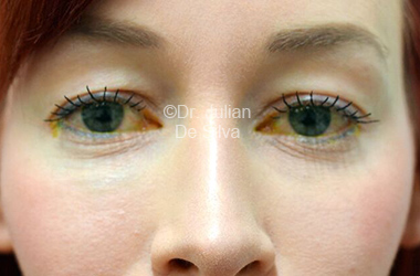 Eyelid Surgery (Blepharoplasty) Before 114