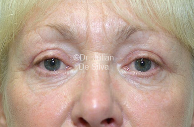 Eyelid Surgery (Blepharoplasty) After 116