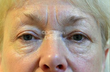 Eyelid Surgery (Blepharoplasty) Before 116