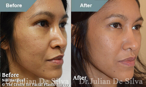 Woman's face, Before and After Cheek Filler Enhancement, female patient, oblique view