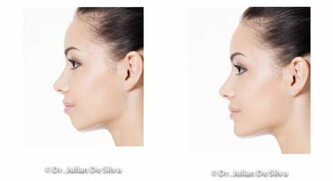 Woman's face, Before and After Chin & Jaw Line Filler Enhancement, left side view