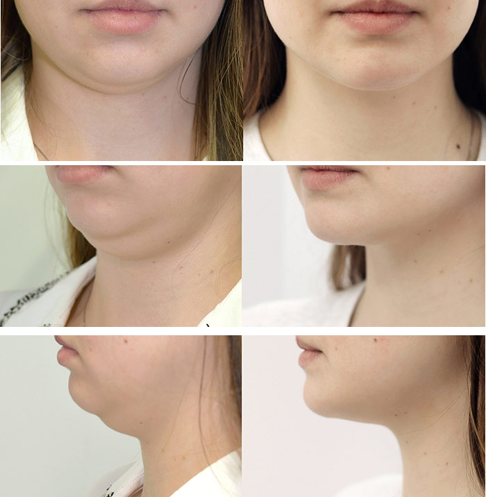 Woman's face, before and after chin implant, treatment photos, front,side,oblique face photos - female patient 1