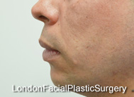 Chin Implants & Reduction Before 14