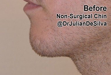 Non-Surgical Treatments Before 2
