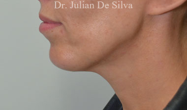 Chin Implants & Reduction After 11