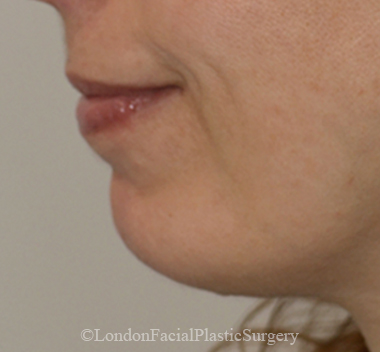 Chin Implants & Reduction After 23