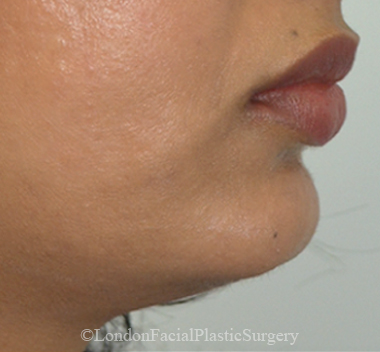 Chin Implants & Reduction After 25