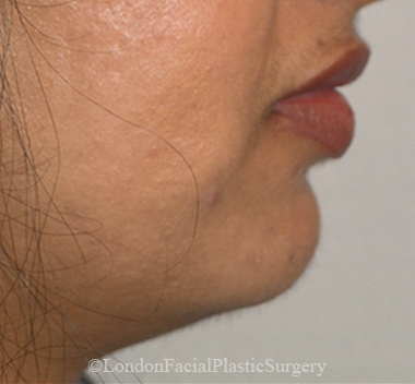 Chin Implants & Reduction Before 25