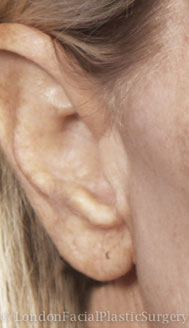 Ear Repair & Re-Shaping After 1