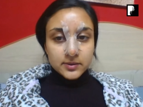11 Ethnic Rhinoplasty Video Diary Day 11 After surgery