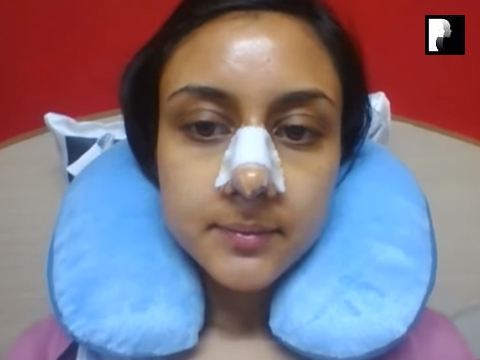 4 Ethnic Rhinoplasty Video Diary Day 3 After surgery