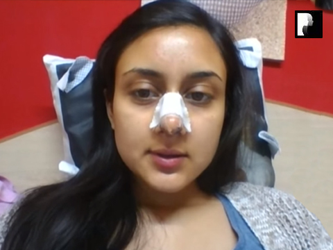 9 Ethnic Rhinoplasty Video Diary Day 8 After surgery